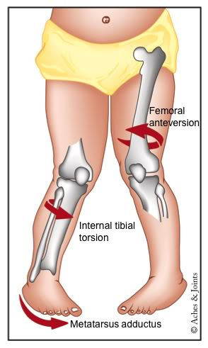 Mx Knee Braces >> Boletín 27: Niños que caminan con las puntas de los pies ...