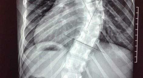 Escoliosis  Radiografia