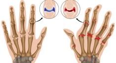 rheumatoid-arthritis-hand