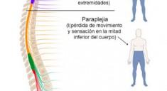 lesion-medular-tipos