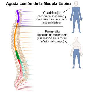 Lesiones De La M 233 Dula Espinal Dr Aurelio Martinez