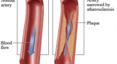 ATEROESCLEROSIS 2